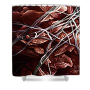 Candida And Epithelial Cells Shower Curtain by David M. Phillips