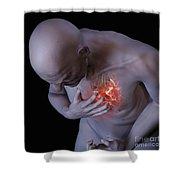 Heart Attack Shower Curtain