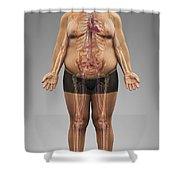 Obesity Shower Curtain
