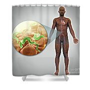 Sleeping Sickness Infection Shower Curtain