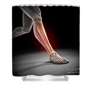 Medial Tibial Stress Syndrome Shower Curtain