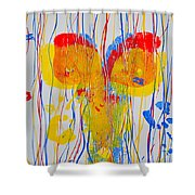 Anterior Aspects Shower Curtain