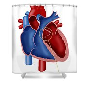 Aortic Valve Shower Curtain
