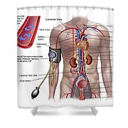 Blood Pressure And Circulatory System Shower Curtain by Stocktrek Images