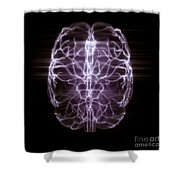 Blood Supply To The Brain Shower Curtain