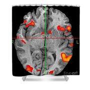 Brain Activity During Language Task, 2 Shower Curtain