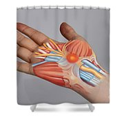 Carpal Tunnel Syndrome Shower Curtain