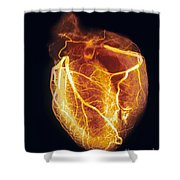 Colored Arteriogram Of Arteries Of Healthy Heart Shower Curtain