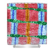 Contracted Skeletal Muscle Tem Shower Curtain
