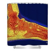 Flat Foot X-ray Shower Curtain