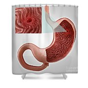 Gastric Ulcer Shower Curtain
