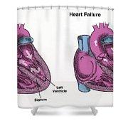 Healthy Heart Vs. Heart Failure Shower Curtain