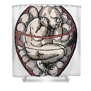 Human Fetus, 16th Century Shower Curtain