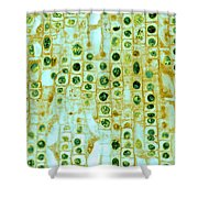 Hyacinth Root Tip Cells Shower Curtain