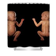Infant Anatomy Shower Curtain