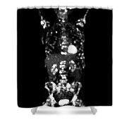 Metastatic Disease Pet Scan Shower Curtain