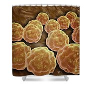 Microscopic View Of Rubella Virus Shower Curtain by Stocktrek Images