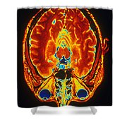 Mri Of Brain Shower Curtain
