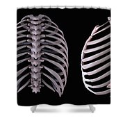 Multiple View Of The Rib Cage Shower Curtain