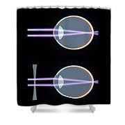 Myopia Or Short Sightedness Poster Shower Curtain