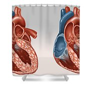 Normal And Diseased Hearts Shower Curtain