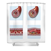 Normal Artery Compared To Plaque Shower Curtain