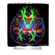 Normal Brain Diffusion Tractography Shower Curtain