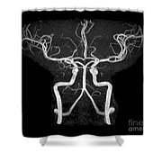 Normal Intracranial Mra Shower Curtain