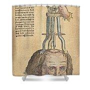 Skull Operation, 1517 Shower Curtain