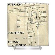 Surgery Controls The Human Mechanism   1906 Shower Curtain