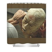 Extreme Sports Volleyball Player From Bodies Exhibit Shower Curtain