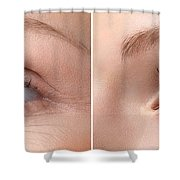Womans Eye With And Without Wrinkles Shower Curtain