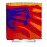 X-ray Of Hand With Rheumatoid Arthritis Shower Curtain