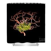 3d Angiogram Of Temporal Lobe Avm Shower Curtain