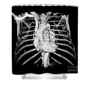 3d Ct Reconstruction Of Heart Shower Curtain by Medical Body Scans