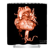 3d Cta Of Heart Shower Curtain by Medical Body Scans