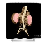 Abdominal Aorta And Kidneys Shower Curtain