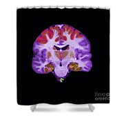 Brain Areas Affected By Alzheimers Shower Curtain