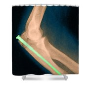 Broken Arm With Metal Pin, X-ray Shower Curtain by Science Source