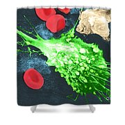 Cancer Cell Death, Sem 1 Of 6 Shower Curtain