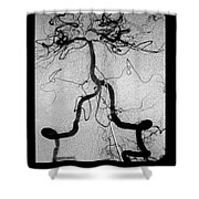 Cerebral Angiogram Shower Curtain