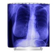 Chest X-ray Of Female Shower Curtain