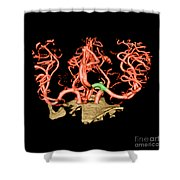 Ct Angiogram Of Aneurysm Shower Curtain