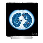 Emphysema On Ct Chest Shower Curtain