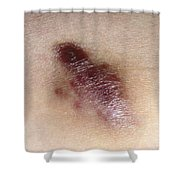 Kaposis Sarcoma Shower Curtain