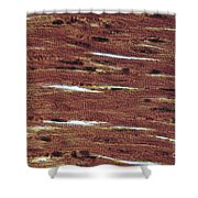 Lm Of Cardiac Muscle Shower Curtain