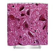 Rabies Virus, Lm Shower Curtain