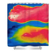 Thermogram Of Circulation In Feet Shower Curtain