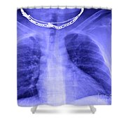 X-ray Of Enlarged Heart Shower Curtain