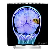 Mri Of Brain Avm Shower Curtain